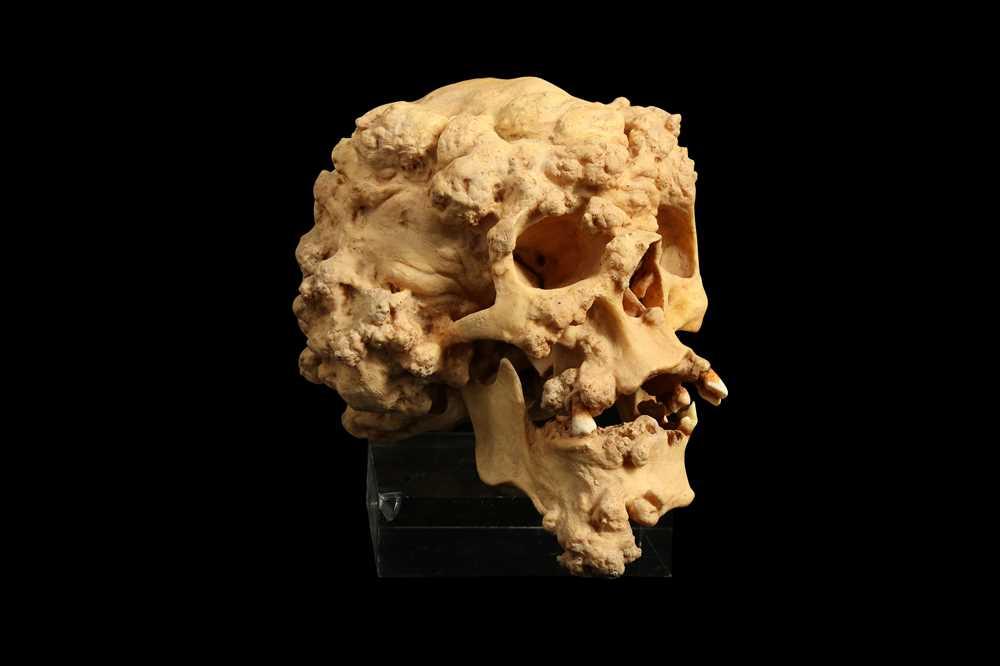 A cast of the skull of the elephant man, Joseph Merrick